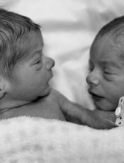Types of Twin Pregnancies – Does it Run in Your Family?